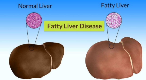 Fatty Liver Symptoms, Causes, and Treatment